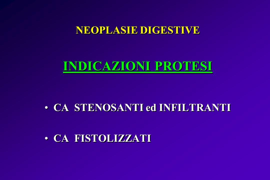 NEOPLASIE DIGESTIVE INDICAZIONI PROTESI CA STENOSANTI ed INFILTRANTI CA FISTOLIZZATI CA STENOSANTI ed INFILTRANTI CA FISTOLIZZATI