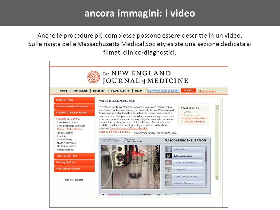ancora immagini: i video Anche le procedure più complesse possono essere descritte in un video.