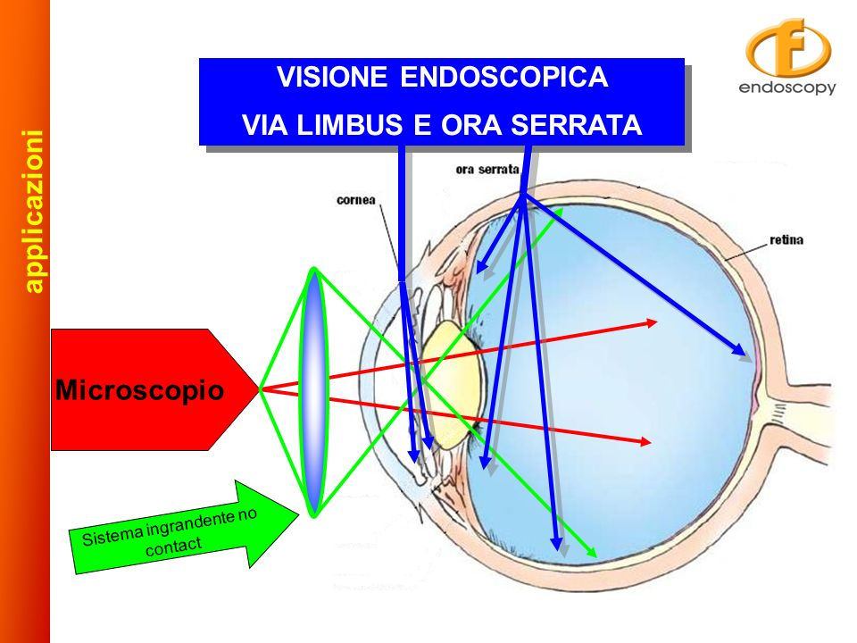 Microscopio VISIONE ENDOSCOPICA VIA LIMBUS E ORA SERRATA VISIONE ENDOSCOPICA VIA LIMBUS E ORA SERRATA Sistema ingrandente no contact a p p l i c a z i o n i
