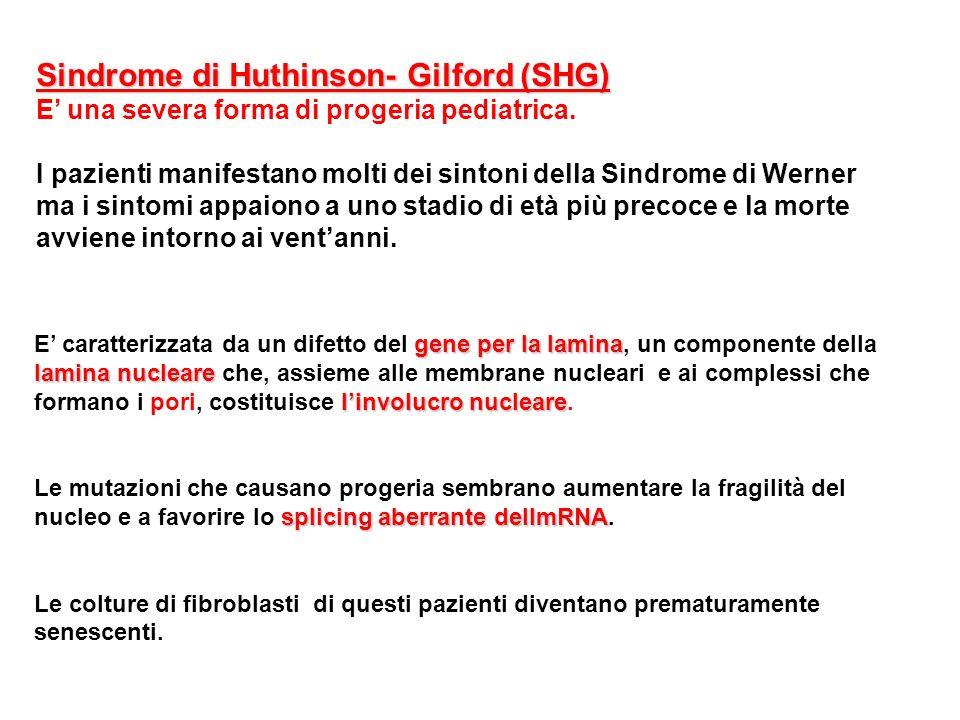 Sindrome di Huthinson- Gilford (SHG) E una severa forma di progeria pediatrica. I pazienti manifestano molti dei sintoni della Sindrome di Werner ma i