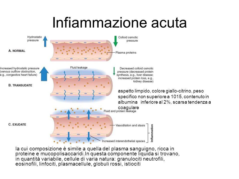 Infiammazione acuta la cui composizione è simile a quella del plasma sanguigno, ricca in proteine e mucopolisaccaridi.In questa componente liquida si