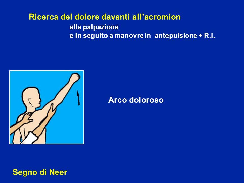 Ricerca del dolore davanti allacromion alla palpazione e in seguito a manovre in antepulsione + R.I. Segno di Neer Arco doloroso