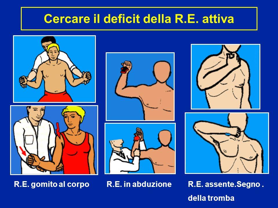 Cercare il deficit della R.E. attiva R.E. gomito al corpo R.E. in abduzione R.E. assente.Segno. della tromba