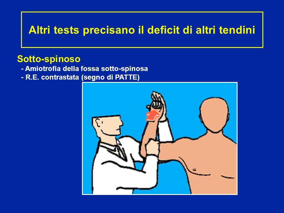 Sotto-spinoso - Amiotrofia della fossa sotto-spinosa - R.E. contrastata (segno di PATTE) Altri tests precisano il deficit di altri tendini