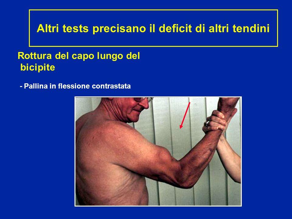 Rottura del capo lungo del bicipite - Pallina in flessione contrastata Altri tests precisano il deficit di altri tendini