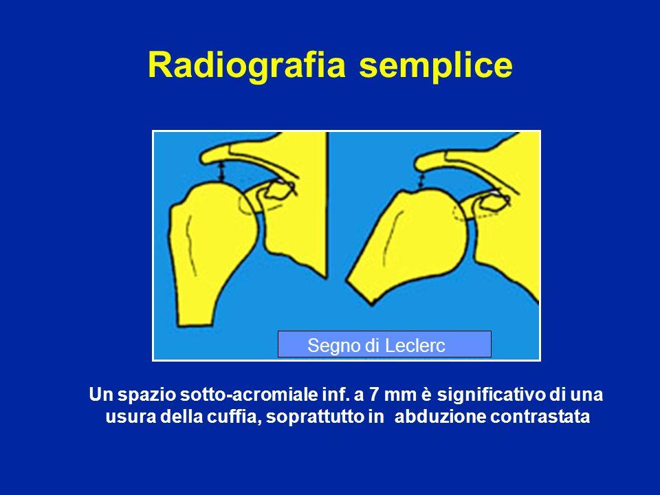 Radiografia semplice Un spazio sotto-acromiale inf. a 7 mm è significativo di una usura della cuffia, soprattutto in abduzione contrastata Segno di Le