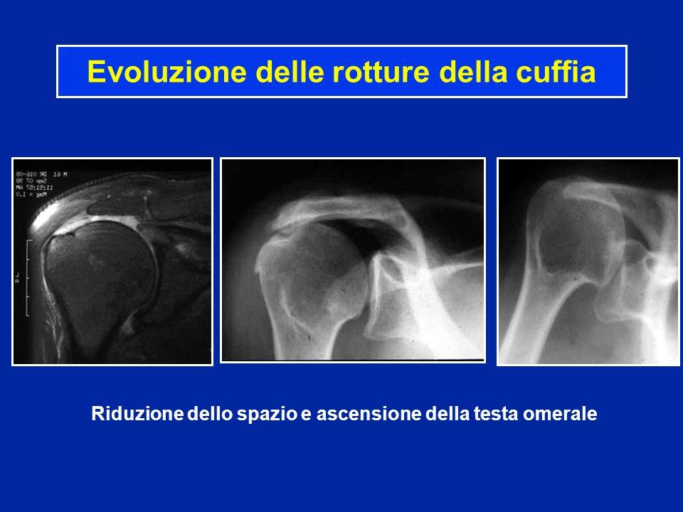 Evoluzione delle rotture della cuffia Riduzione dello spazio e ascensione della testa omerale