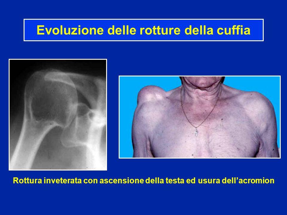 Rottura inveterata con ascensione della testa ed usura dellacromion Evoluzione delle rotture della cuffia