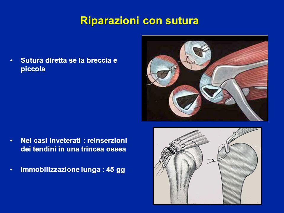 Riparazioni con sutura Sutura diretta se la breccia e piccola Nei casi inveterati : reinserzioni dei tendini in una trincea ossea Immobilizzazione lun