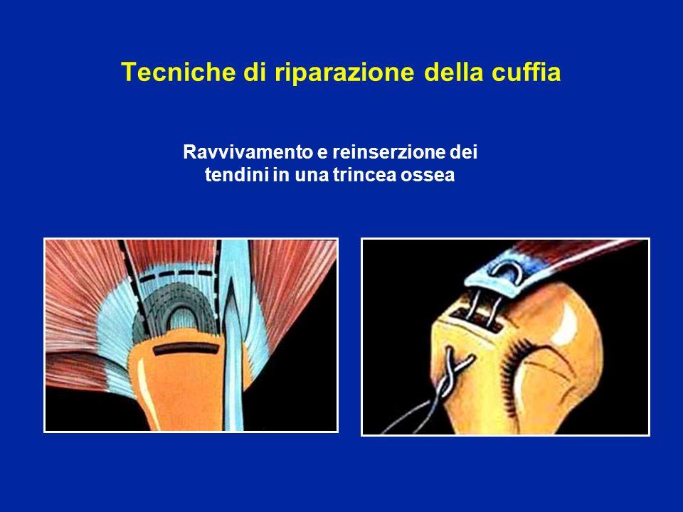 Tecniche di riparazione della cuffia Ravvivamento e reinserzione dei tendini in una trincea ossea