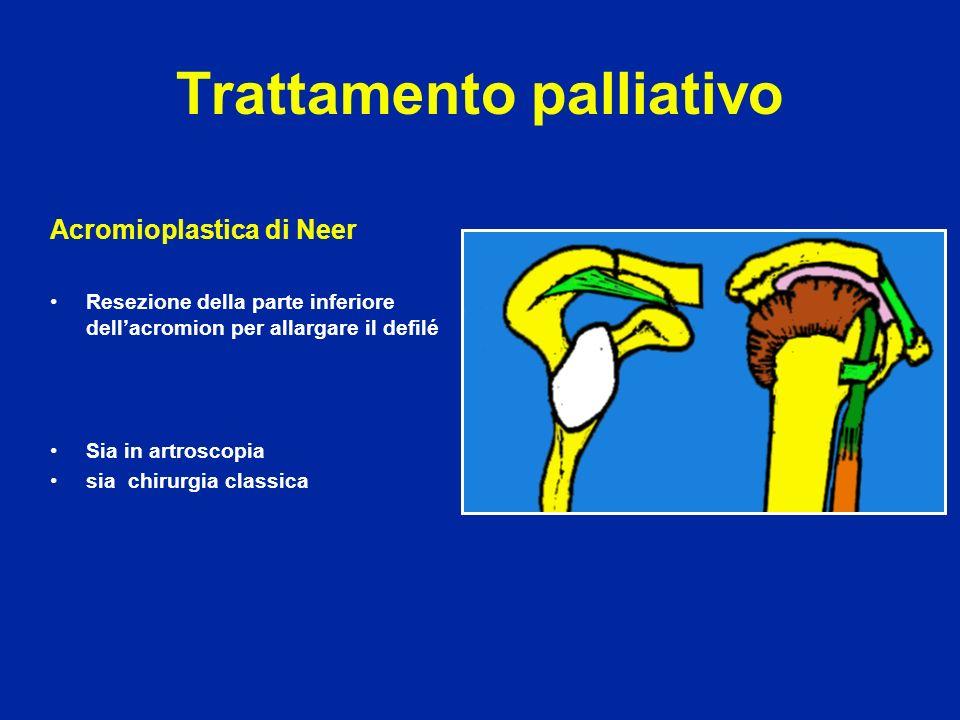 Trattamento palliativo Acromioplastica di Neer Resezione della parte inferiore dellacromion per allargare il defilé Sia in artroscopia sia chirurgia c