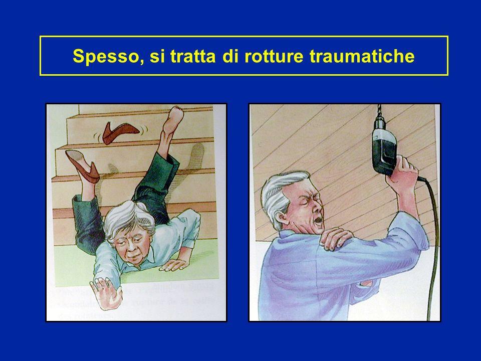 Riparazioni con sutura Sutura diretta se la breccia e piccola Nei casi inveterati : reinserzioni dei tendini in una trincea ossea Immobilizzazione lunga : 45 gg