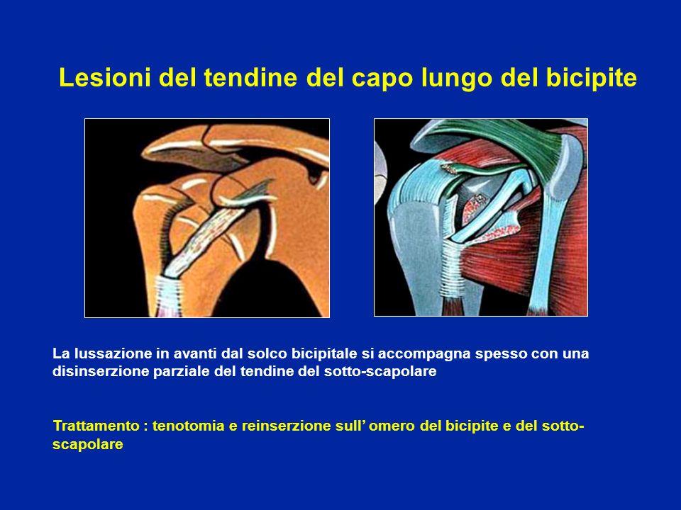 La lussazione in avanti dal solco bicipitale si accompagna spesso con una disinserzione parziale del tendine del sotto-scapolare Trattamento : tenotom