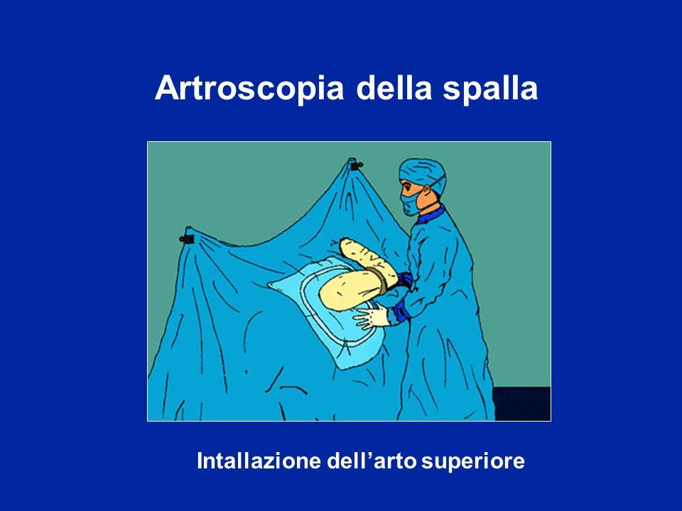 Artroscopia della spalla Intallazione dellarto superiore