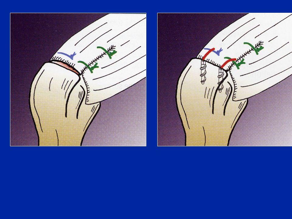 Cause di deficit del tendine del bicipite Dolore nella guaina Palm-up test Segno di Yergason