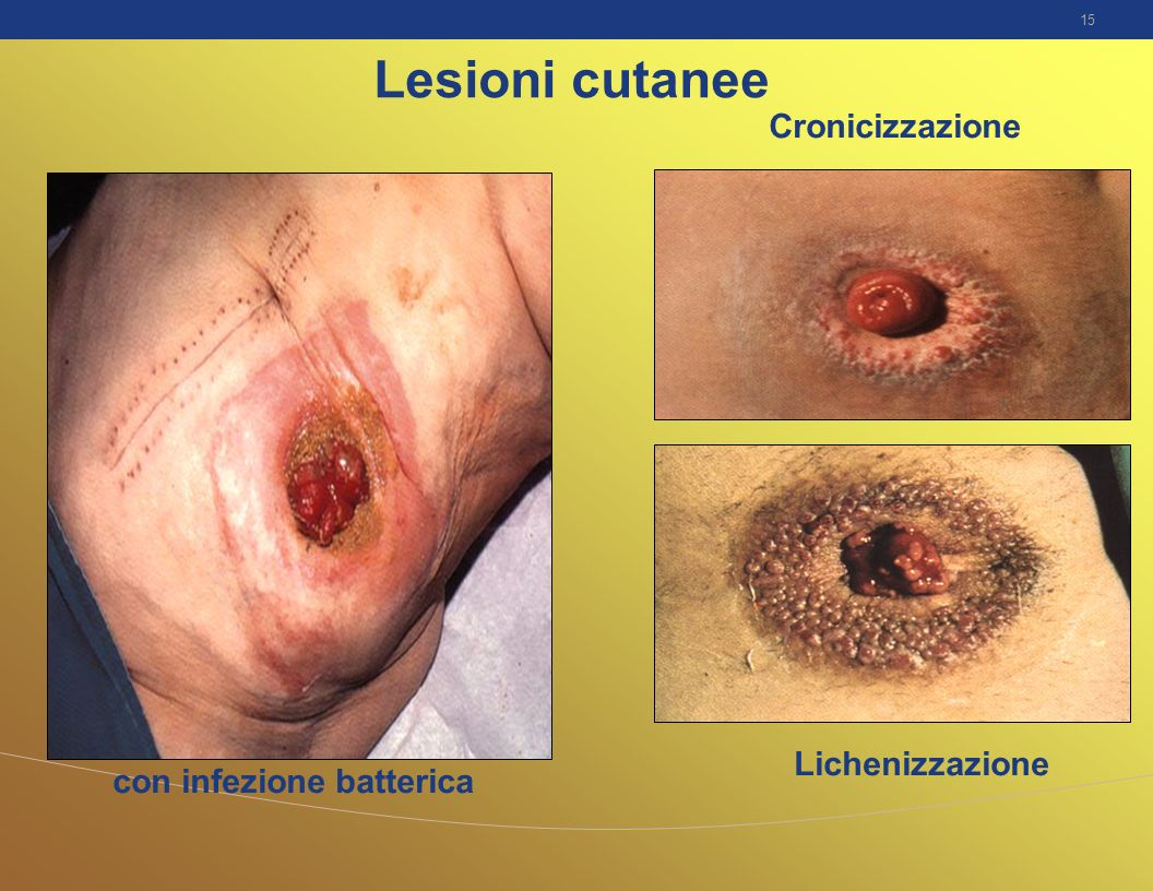 15 Lesioni cutanee Lichenizzazione con infezione batterica Cronicizzazione