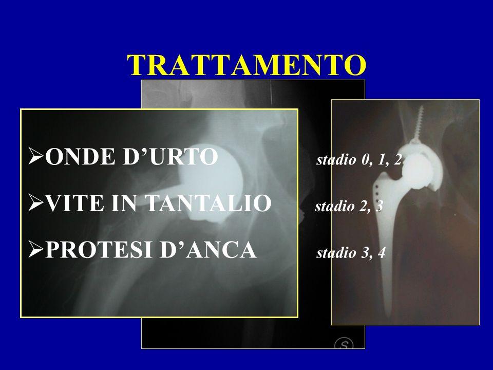 TRATTAMENTO ONDE DURTO stadio 0, 1, 2 VITE IN TANTALIO stadio 2, 3 PROTESI DANCA stadio 3, 4