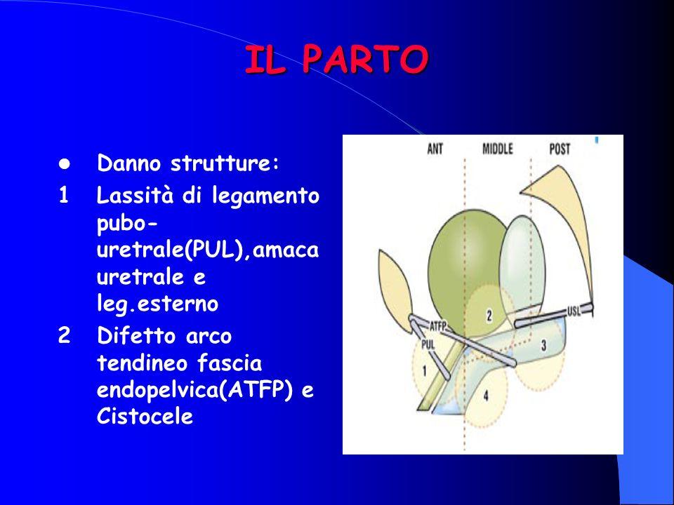 IL PARTO Danno strutture: 1Lassità di legamento pubo- uretrale(PUL),amaca uretrale e leg.esterno 2Difetto arco tendineo fascia endopelvica(ATFP) e Cistocele