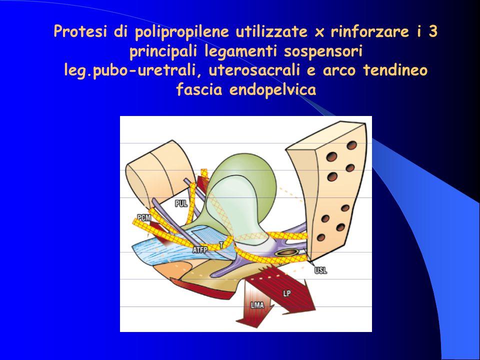 Protesi di polipropilene utilizzate x rinforzare i 3 principali legamenti sospensori leg.pubo-uretrali, uterosacrali e arco tendineo fascia endopelvica