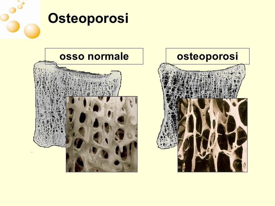 Osteoporosi osteoporosi osso normale
