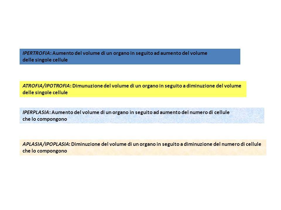 IPERTROFIA: Aumento del volume di un organo in seguito ad aumento del volume delle singole cellule IPERPLASIA: Aumento del volume di un organo in seguito ad aumento del numero di cellule che lo compongono ATROFIA/IPOTROFIA: Dimunuzione del volume di un organo in seguito a diminuzione del volume delle singole cellule APLASIA/IPOPLASIA: Diminuzione del volume di un organo in seguito a diminuzione del numero di cellule che lo compongono