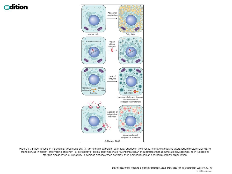 Figure 1-35 Mechanisms of intracellular accumulations: (1) abnormal metabolism, as in fatty change in the liver; (2) mutations causing alterations in