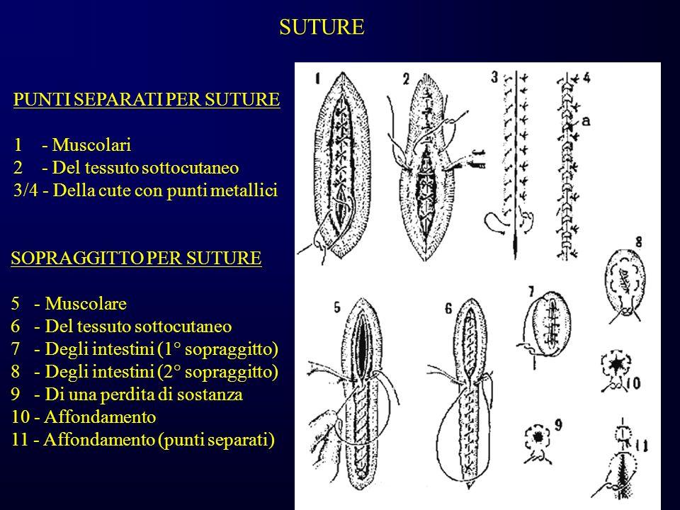 SUTURE PUNTI SEPARATI PER SUTURE 1 - Muscolari 2 - Del tessuto sottocutaneo 3/4 - Della cute con punti metallici SOPRAGGITTO PER SUTURE 5 - Muscolare