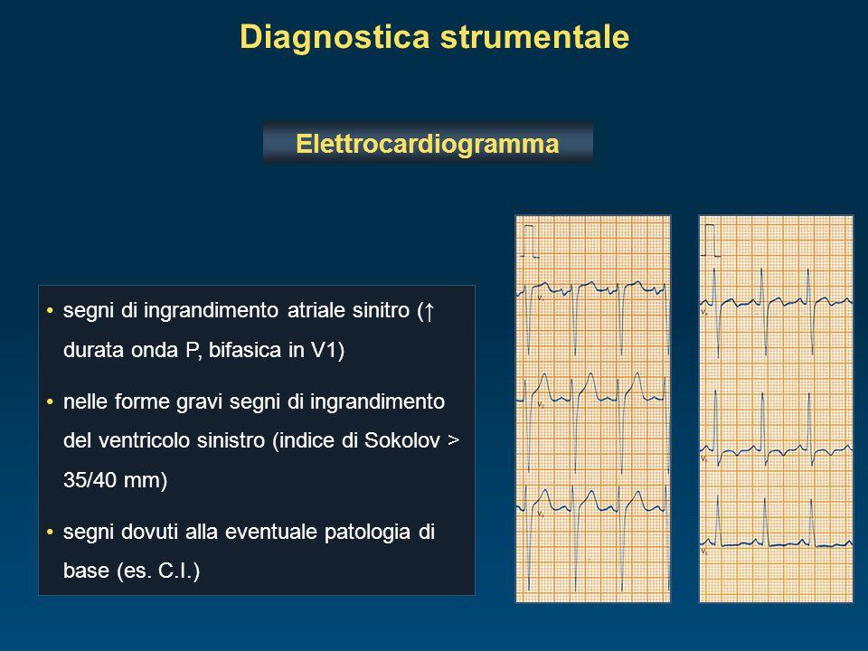Diagnostica strumentale Elettrocardiogramma segni di ingrandimento atriale sinitro ( durata onda P, bifasica in V1) nelle forme gravi segni di ingrand