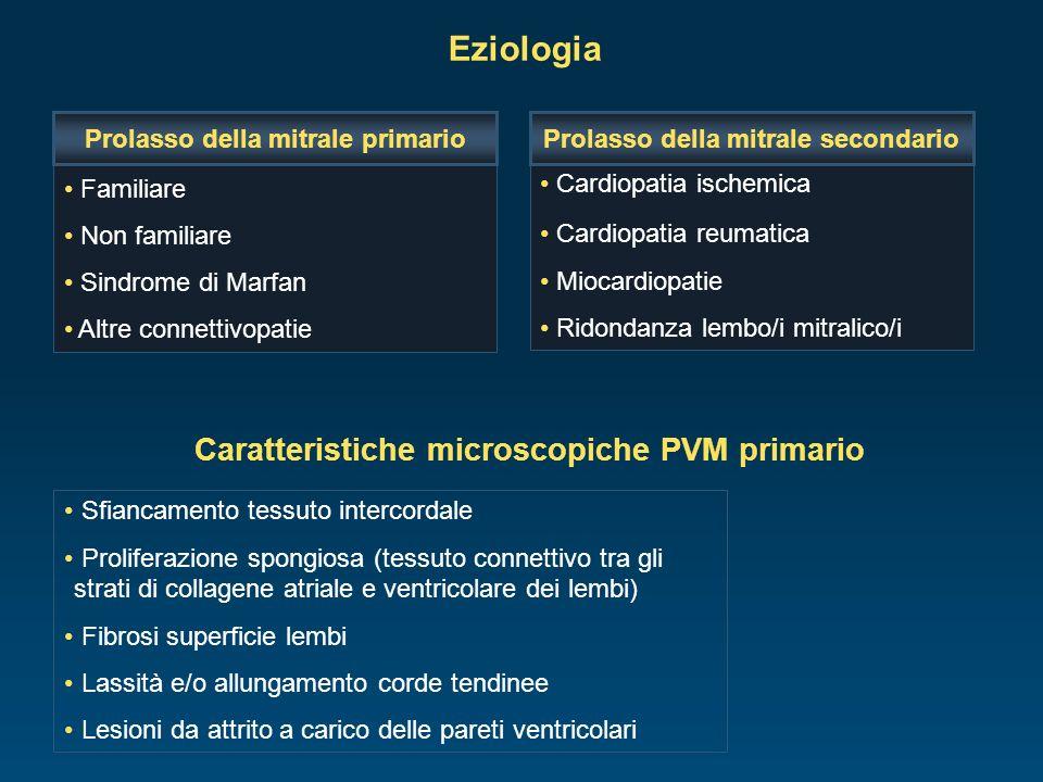 Eziologia Familiare Non familiare Sindrome di Marfan Altre connettivopatie Prolasso della mitrale primario Cardiopatia ischemica Cardiopatia reumatica