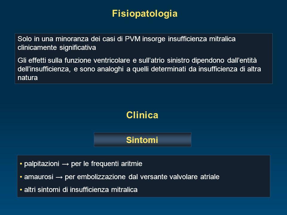 Fisiopatologia Solo in una minoranza dei casi di PVM insorge insufficienza mitralica clinicamente significativa Gli effetti sulla funzione ventricolar