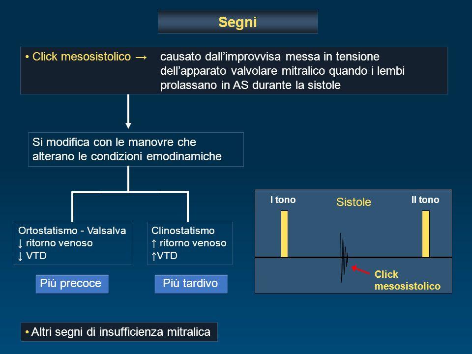 Più precoce Segni Click mesosistolico causato dallimprovvisa messa in tensione dellapparato valvolare mitralico quando i lembi prolassano in AS durant
