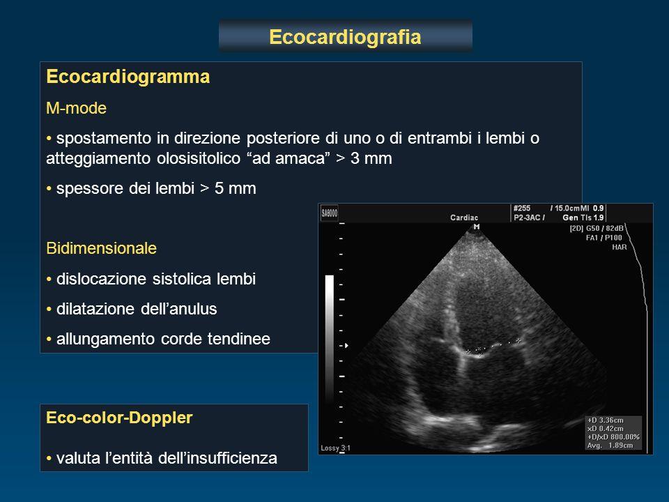 Ecocardiogramma M-mode spostamento in direzione posteriore di uno o di entrambi i lembi o atteggiamento olosisitolico ad amaca > 3 mm spessore dei lem
