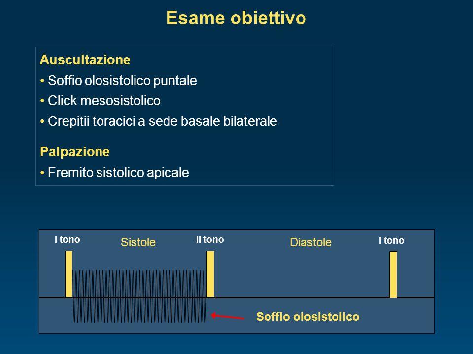 Esame obiettivo Auscultazione Soffio olosistolico puntale Click mesosistolico Crepitii toracici a sede basale bilaterale Palpazione Fremito sistolico