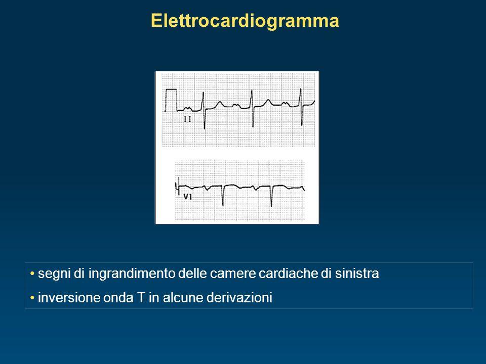 segni di ingrandimento delle camere cardiache di sinistra inversione onda T in alcune derivazioni Elettrocardiogramma