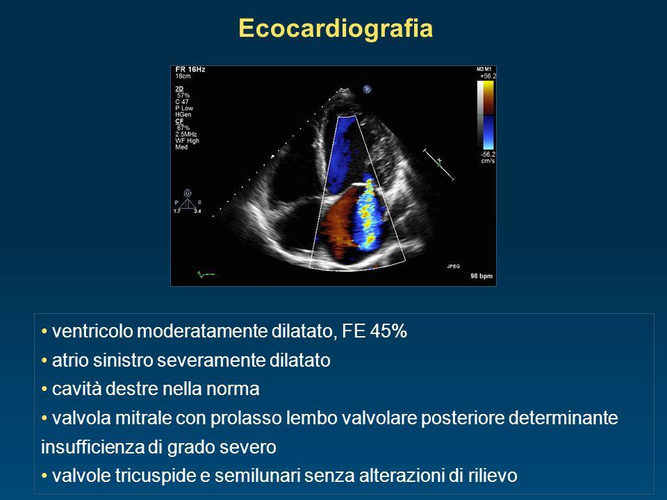 ventricolo moderatamente dilatato, FE 45% atrio sinistro severamente dilatato cavità destre nella norma valvola mitrale con prolasso lembo valvolare p