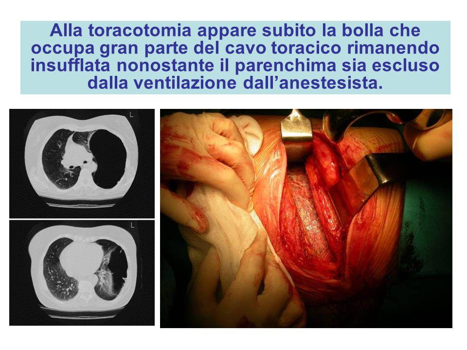 Alla toracotomia appare subito la bolla che occupa gran parte del cavo toracico rimanendo insufflata nonostante il parenchima sia escluso dalla ventil