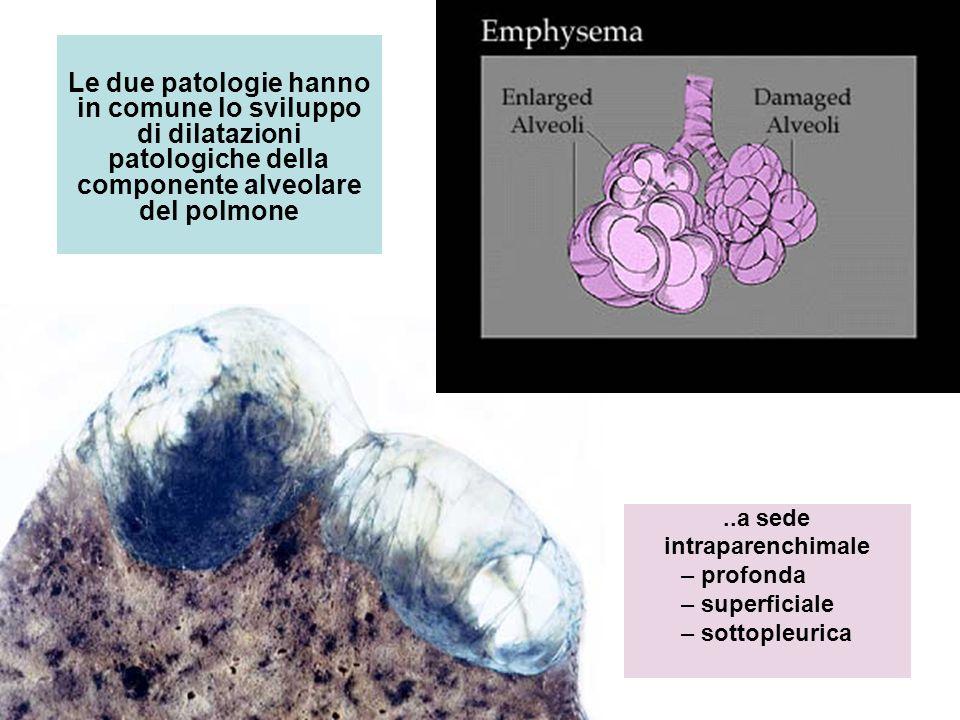 Le due patologie hanno in comune lo sviluppo di dilatazioni patologiche della componente alveolare del polmone..a sede intraparenchimale – profonda –