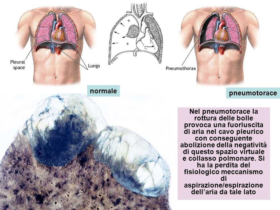 Nel pneumotorace la rottura delle bolle provoca una fuoriuscita di aria nel cavo pleurico con conseguente abolizione della negatività di questo spazio