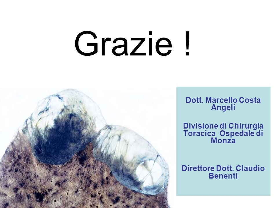 Grazie ! Dott. Marcello Costa Angeli Divisione di Chirurgia Toracica Ospedale di Monza Direttore Dott. Claudio Benenti
