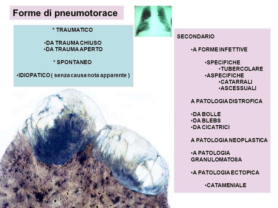 Forme di pneumotorace * TRAUMATICO DA TRAUMA CHIUSO DA TRAUMA APERTO * SPONTANEO IDIOPATICO ( senza causa nota apparente ) SECONDARIO A FORME INFETTIV