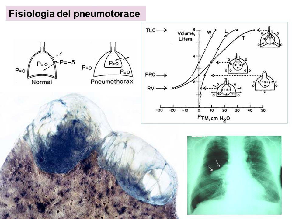 Fisiologia del pneumotorace