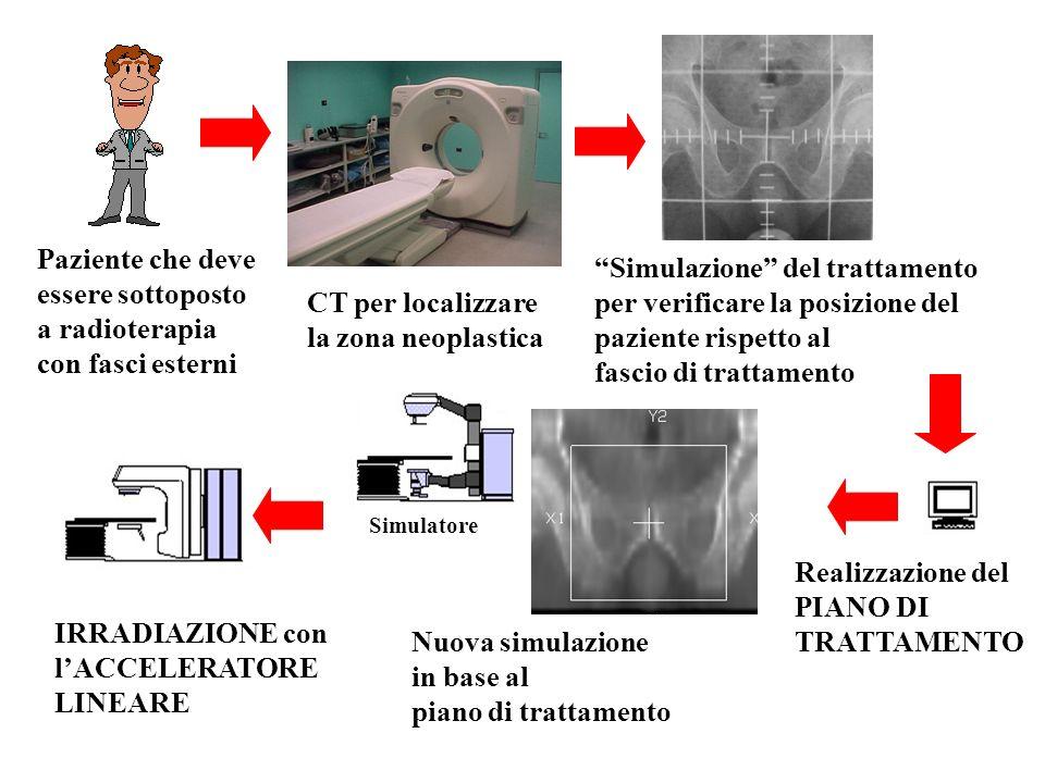 IRRADIAZIONE con lACCELERATORE LINEARE Realizzazione del PIANO DI TRATTAMENTO Paziente che deve essere sottoposto a radioterapia con fasci esterni CT