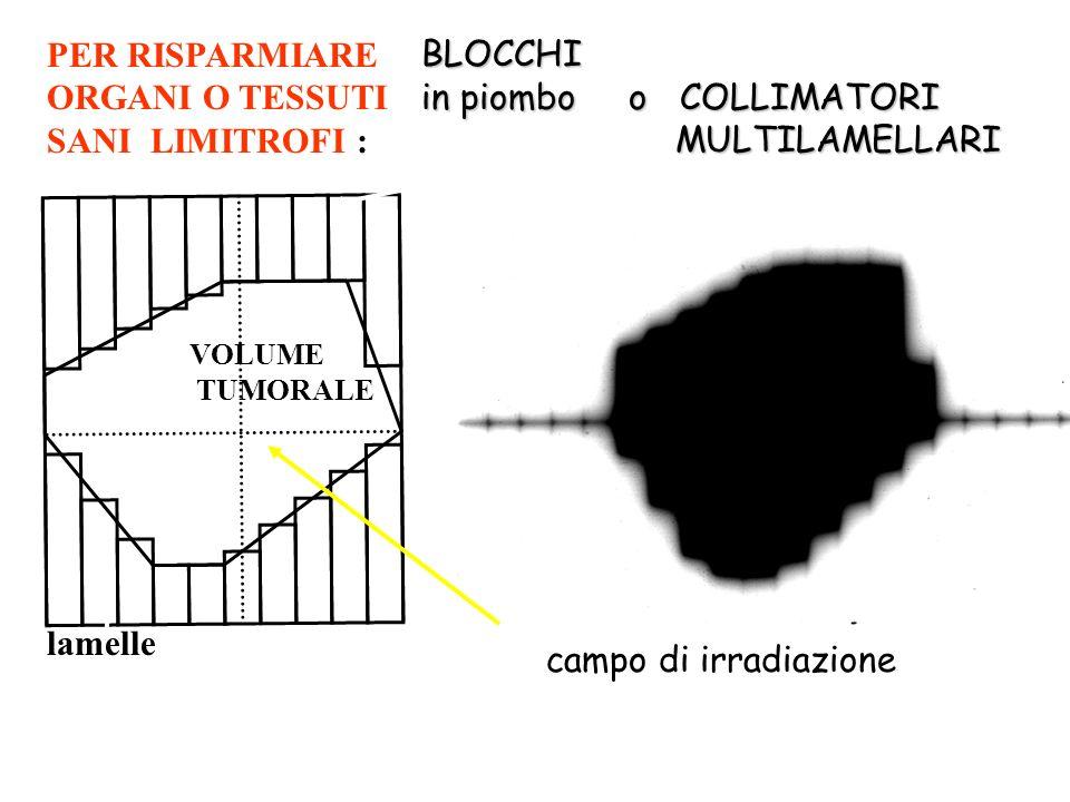 BLOCCHI in piombo o COLLIMATORI MULTILAMELLARI MULTILAMELLARI PER RISPARMIARE ORGANI O TESSUTI SANI LIMITROFI : VOLUME TUMORALE lamelle VOLUME TUMORAL