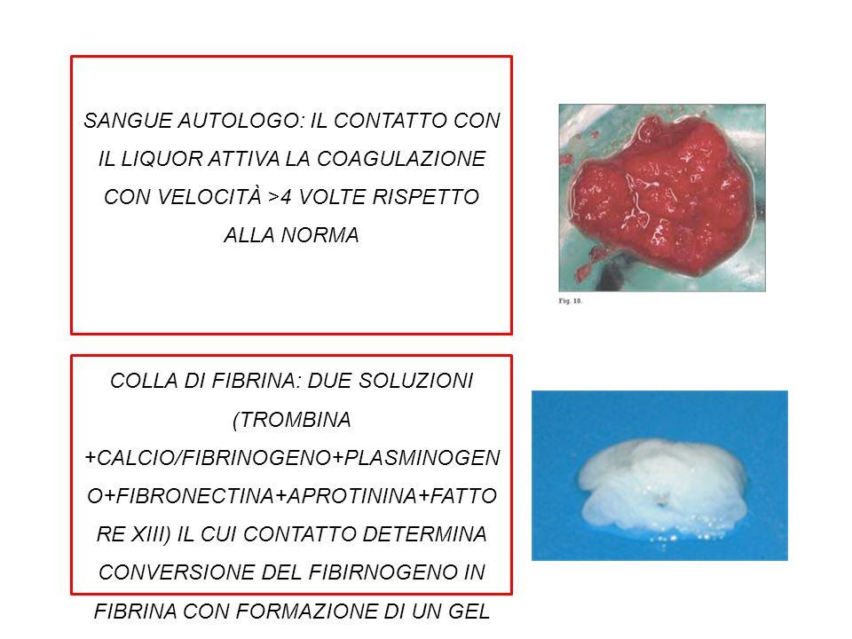 COLLA DI FIBRINA: DUE SOLUZIONI (TROMBINA +CALCIO/FIBRINOGENO+PLASMINOGEN O+FIBRONECTINA+APROTININA+FATTO RE XIII) IL CUI CONTATTO DETERMINA CONVERSIO