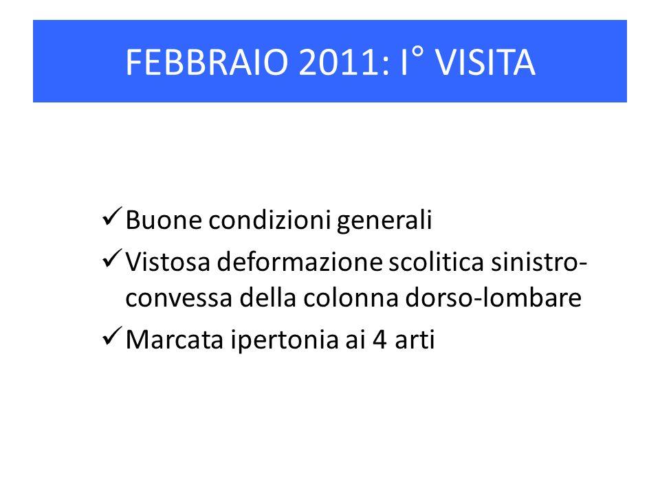 FEBBRAIO 2011: I° VISITA Buone condizioni generali Vistosa deformazione scolitica sinistro- convessa della colonna dorso-lombare Marcata ipertonia ai
