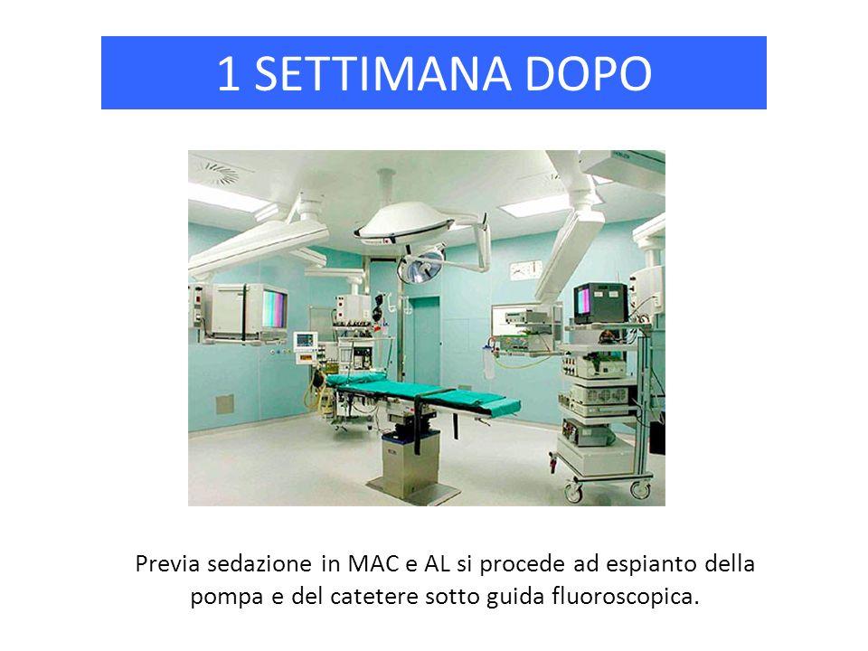 1 SETTIMANA DOPO Previa sedazione in MAC e AL si procede ad espianto della pompa e del catetere sotto guida fluoroscopica.