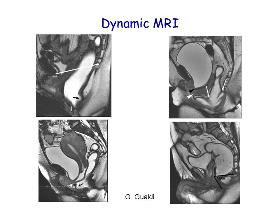 Dynamic MRI G. Gualdi