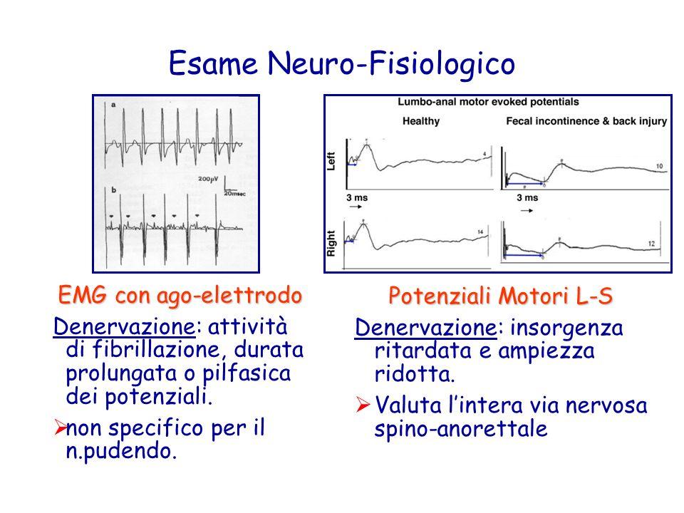 Esame Neuro-Fisiologico EMG con ago-elettrodo Denervazione: attività di fibrillazione, durata prolungata o pilfasica dei potenziali. non specifico per