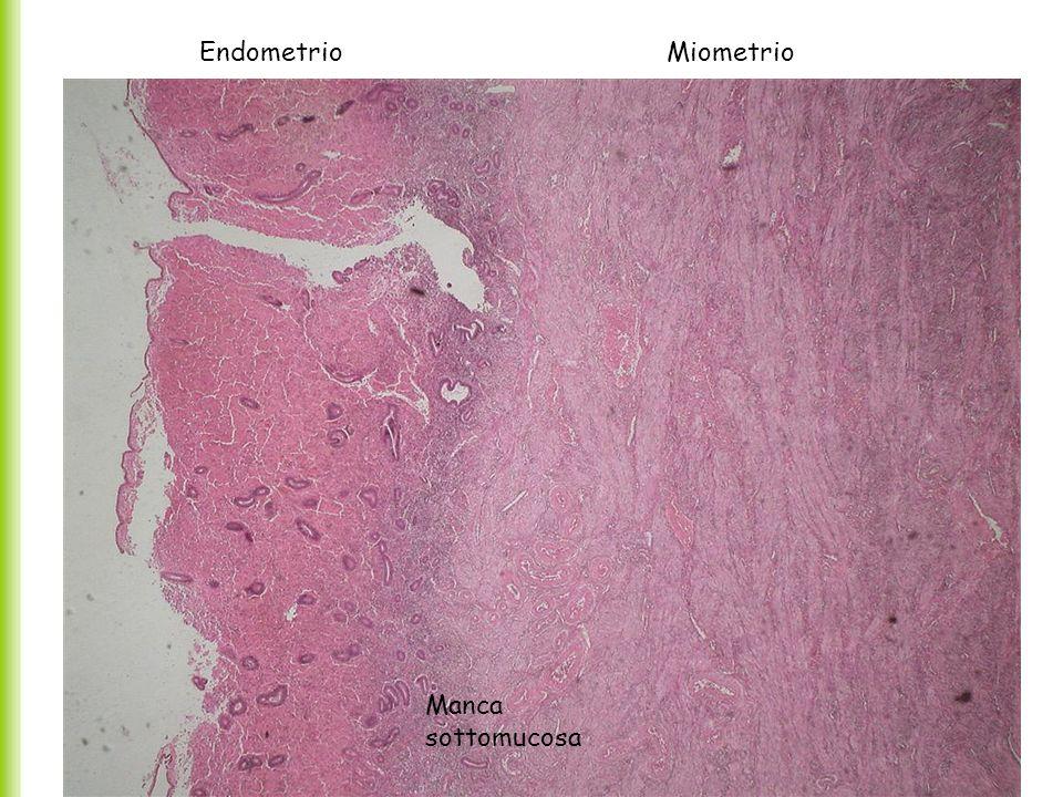 -La tonaca mucosa o Endometrio (10% della massa) si continua con quella che riveste le tube e la vagina.
