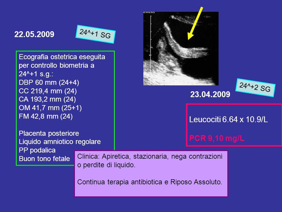22.05.2009 Ecografia ostetrica eseguita per controllo biometria a 24^+1 s.g.: DBP 60 mm (24+4) CC 219,4 mm (24) CA 193,2 mm (24) OM 41,7 mm (25+1) FM